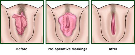 hvordan er en vagina forvandlet til en penis
