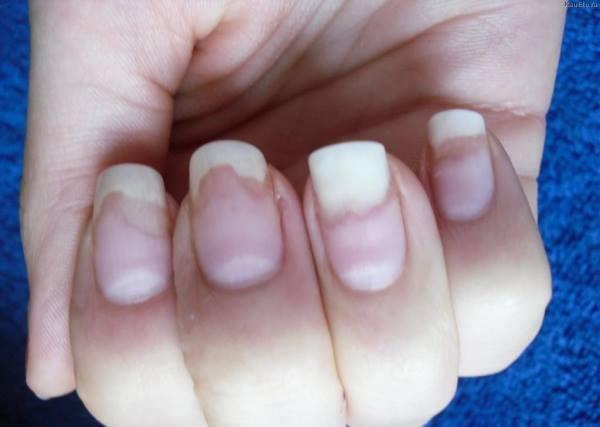 болезни ногтей фото и описание