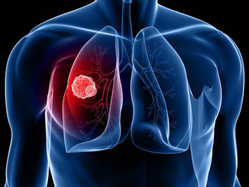 http://microbak.ru/infekcionnye-zabolevaniya/tuberkulez/razvitie-2.html